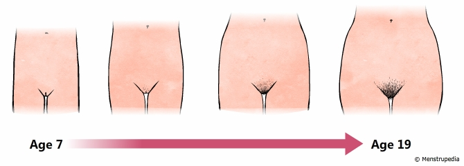 illustration of widening of hips and growth of pubic hair during puberty in girls from age 7 to age 19 - Menstrupedia